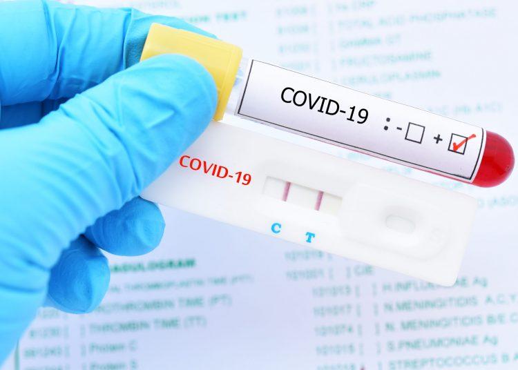 Un total de 37,867 personas permanecen con el virus. | Getty Images.