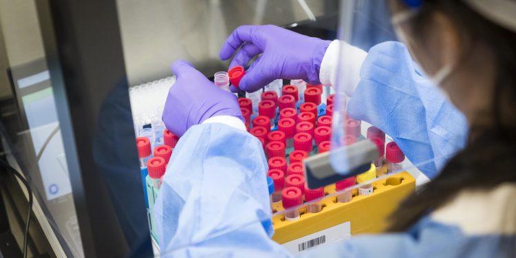 coronavirus covid, pruebas covid
